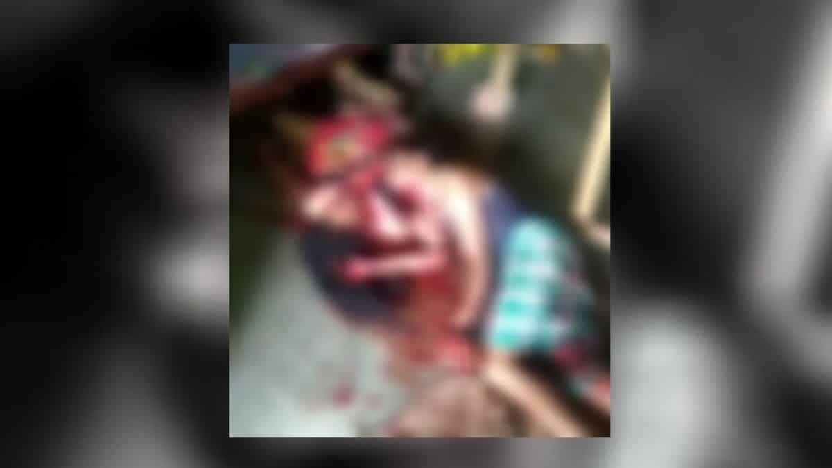 अररिया: घरेलू विवाद में पति-पत्नी ने की एक दूसरे का गला काट कर हत्या करने की कोशिश